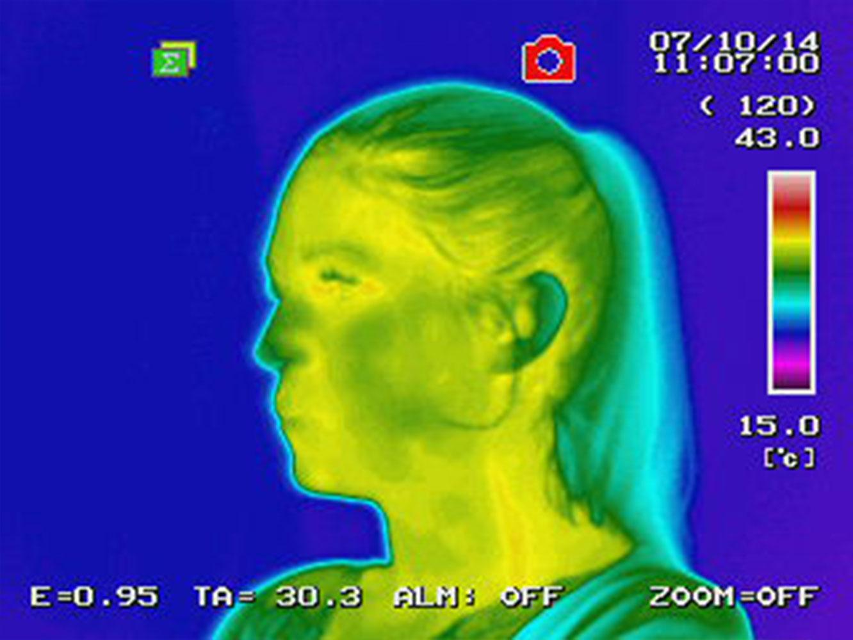 termografia con shunghite