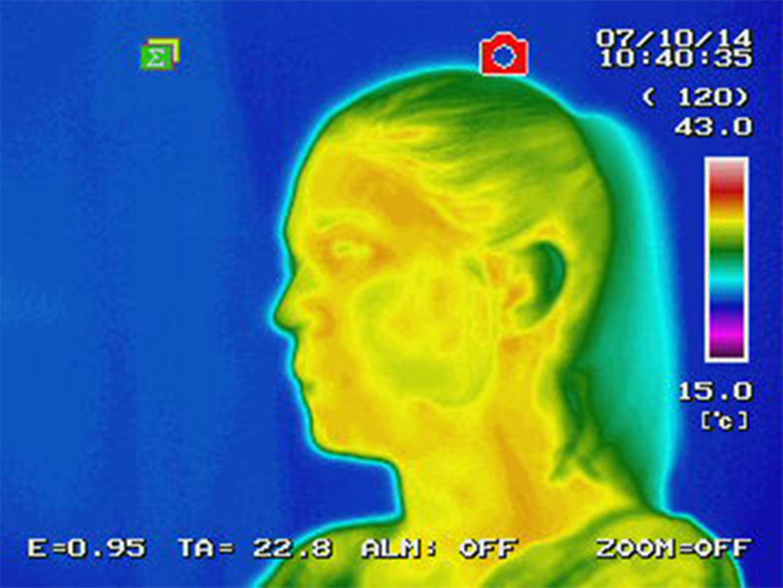 termografia senza shunghite